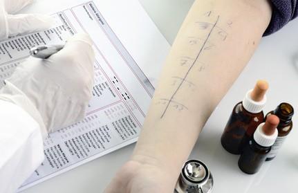 Test allergie alimentari