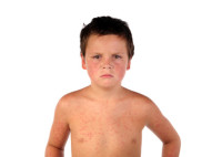 Sick boy child 2
