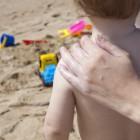 L'eritema solare nel bambino